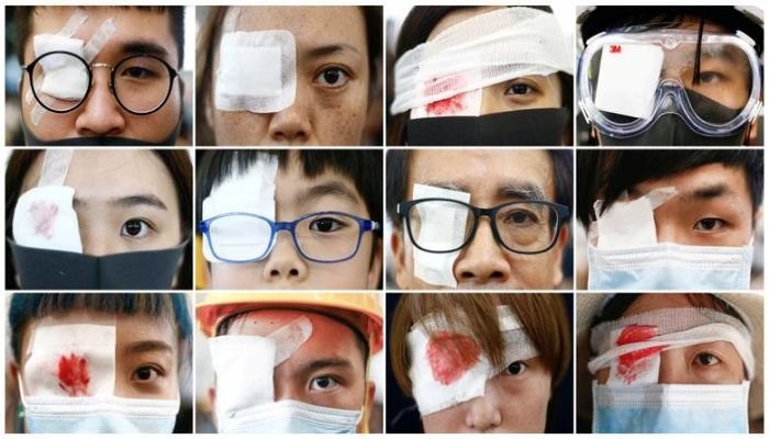 A combination picture shows anti-extradition bill protesters wearing an eyepatch, in reference to a female medic that was injured in clashes with police, during a protest inside the airport terminal in Hong Kong, August 12, 2019. REUTERS