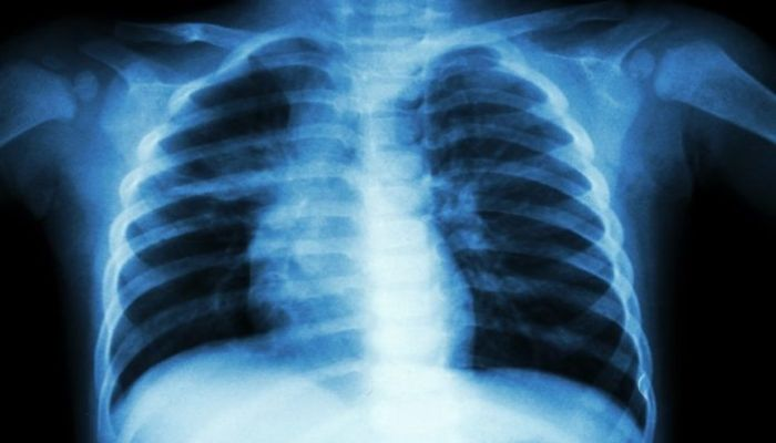 Strengthening Collaboration for Tackling Tuberculosis