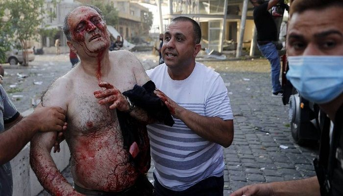 Civilians help an injured man at the explosion scene that hit the seaport of Beirut. Collected from AP