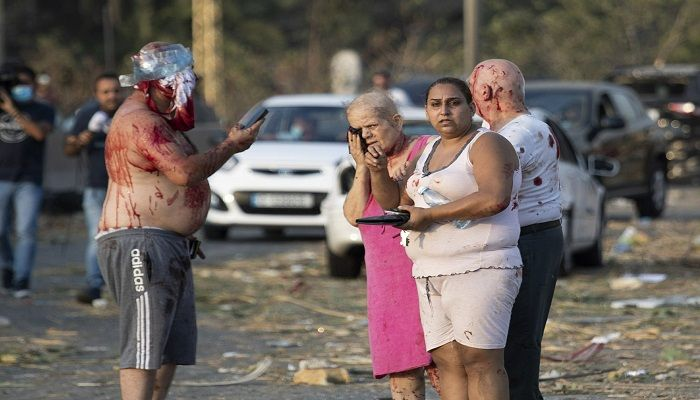 Injured people stand after the enormous explosion. Photo: Collected from AP