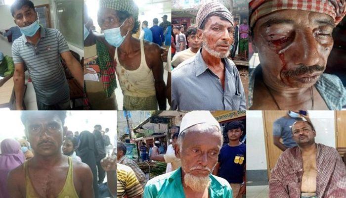 10 Sustain Bullet Wounds in Satkania Clash